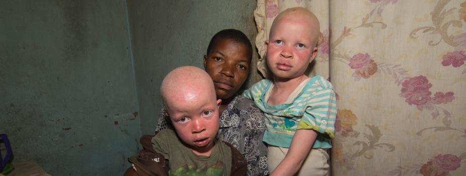 People with albinism in Malawi