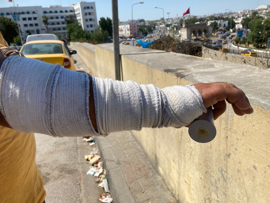 Alaa Hosni was injured when security forces burst into his home, beat him and fired tear gas nearly suffocating his baby daughter ©Amnesty International