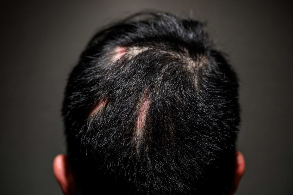 Then-17-year old high-school student Joseph poses in Hong Kong to show scarring from injuries on his head which he received on the night of August 31, 2019, when he and others were allegedly clubbed repeatedly with batons inside a waiting train after a team of riot police stormed into the Prince Edward subway station